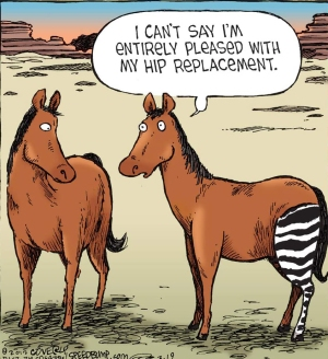 OA-HipReplacement1